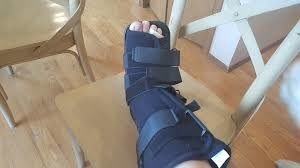 broken leg european travel insurance